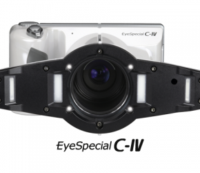 http://alkordent.ru/wp-content/uploads/2020/08/eyespecial-c4-290x250.png